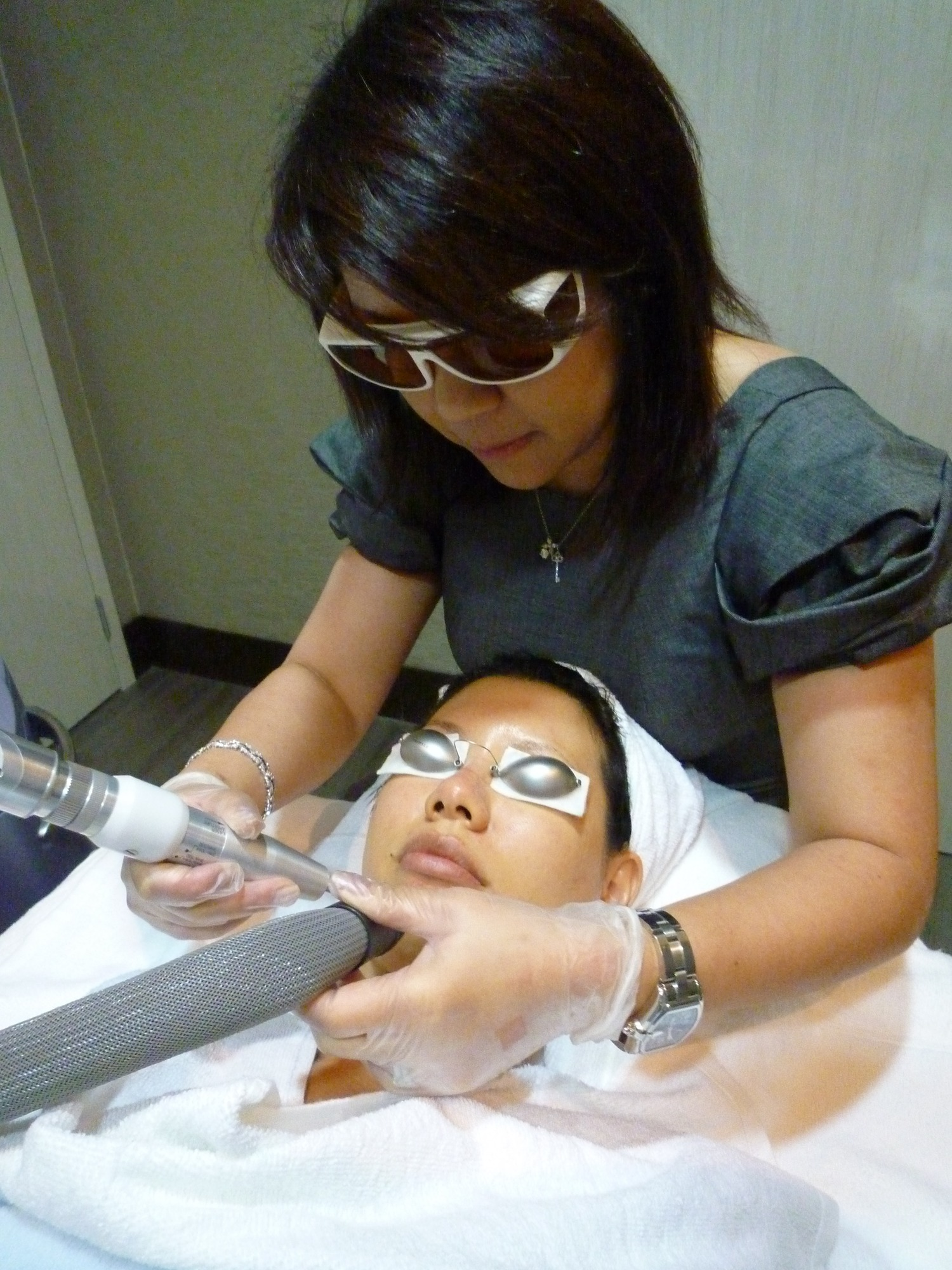 revlite laser treatment