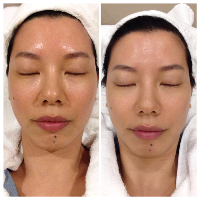 Tadah! Post combination treatment, skin is smoother, brighter and more even-toned.