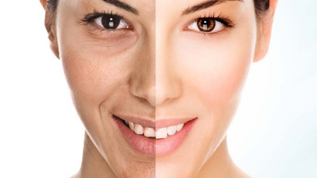 Skin laser anti aging treatment