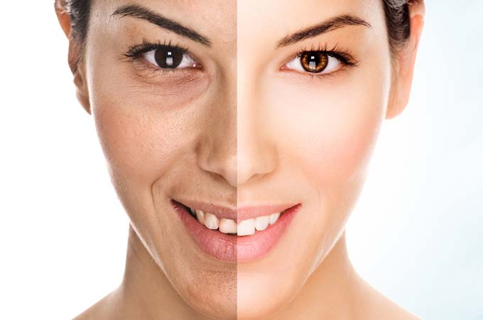 Skin laser anti aging treatment