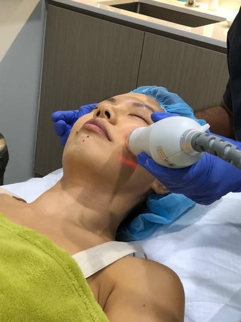 Secret RF treatment at The Wellness Clinic