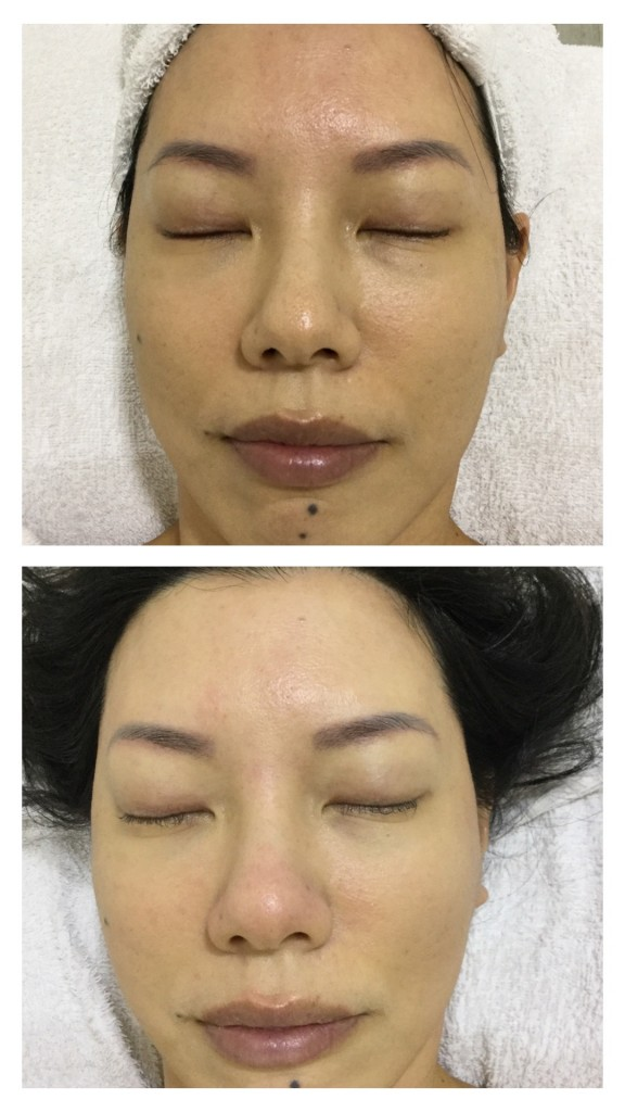 Before (top) and after (bottom) SkinLab Medical Peel Facial.