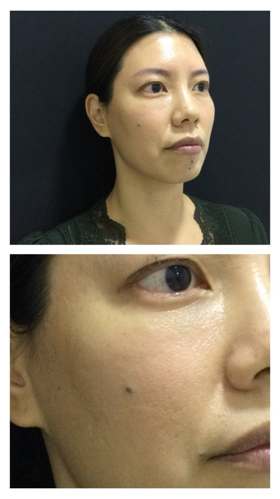 More refined skin and a subtle glow post Profhilo treatment.