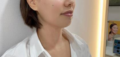 The Fotona 5D Laser Lift & Rejuvenation stimulates collagen to improve skin tightness and elasticity.