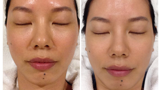 Before and after AesCure combination treatments